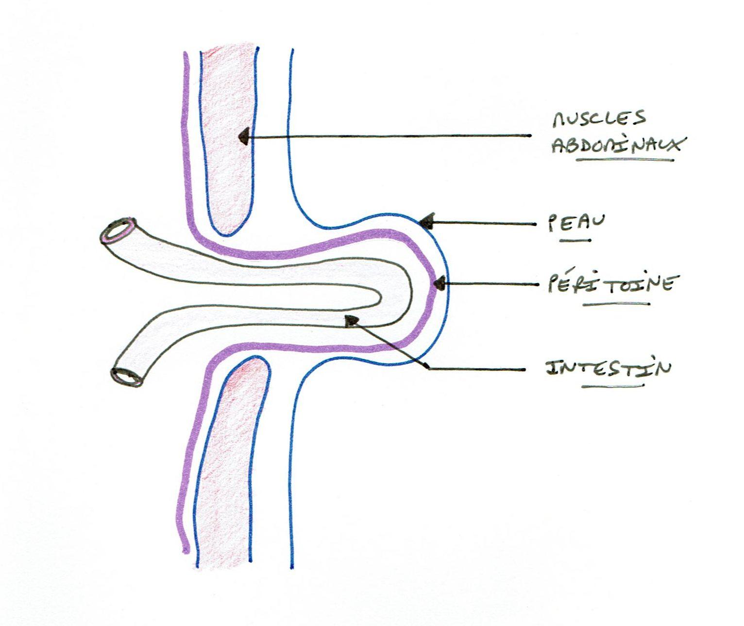 Hernie inguinale - Bordeaux Chirurgie Viscérale et Digestive
